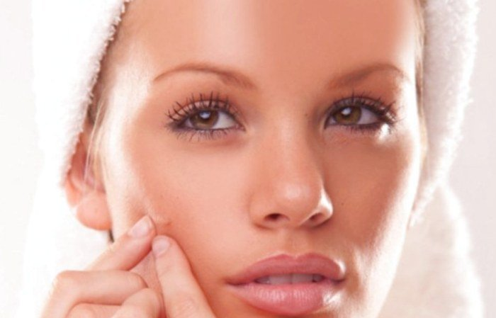 How-to-get-rid-of-pimples-on-oily-skin