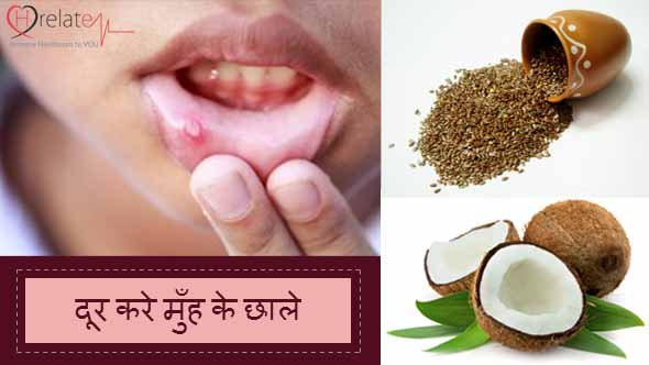 Mouth-Ulcer-Remedies-in-Hindi