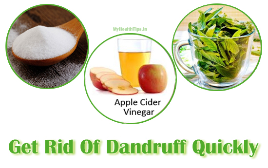 Top-Home-Remedies-To-Get-Rid-Of-Dandruff