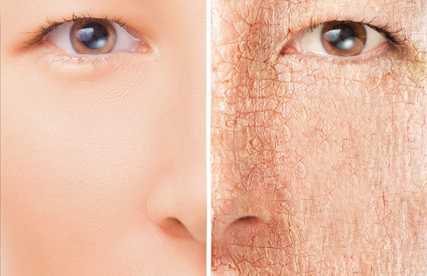 Remedies for Dry Skin in Hindi