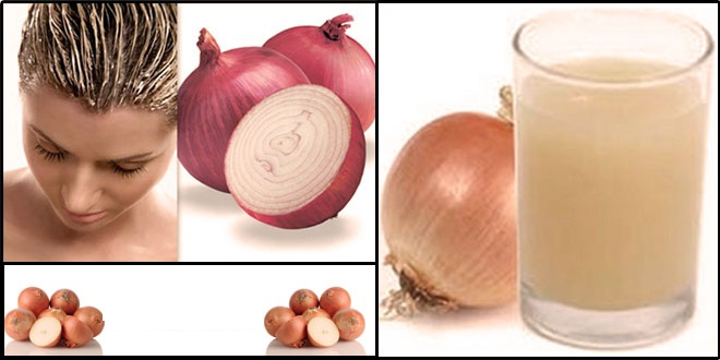 Onion Juice for Hair Loss in Hindi