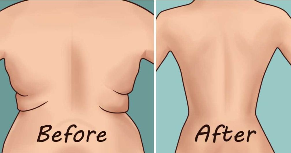 Eliminate-Back-Fat-and-Underarm-Flab-with-4-Quick-Exercises